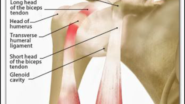 a description of tendonitis which means inflammation of a tendon Knee tendonitis refers to the irritation, swelling, and inflammation of the tendons in the knee area knee tendons are thick cords that attach the bone to the muscles several tendons are in the knee region, but the one that is most often affected is the patellar tendon group, which is located at the front of the knee.