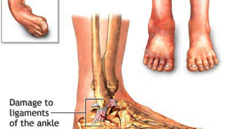 Naturally Healing the Most Common Ankle Sprain