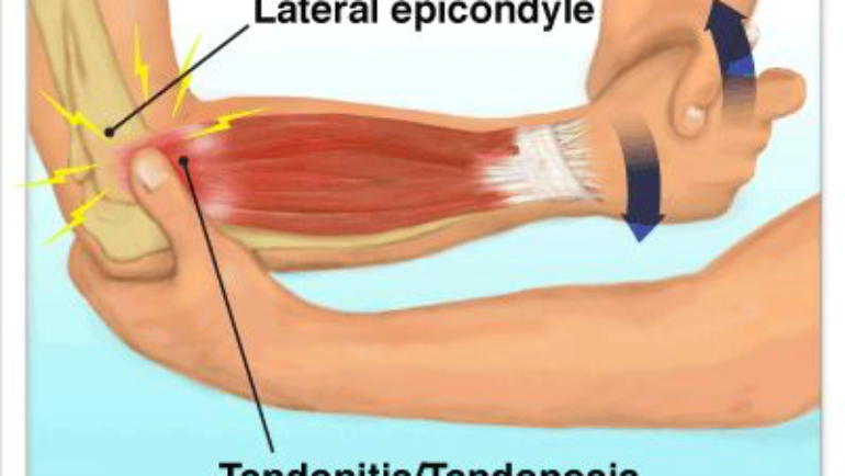 Elbow Pain Due to Repetitive Movements