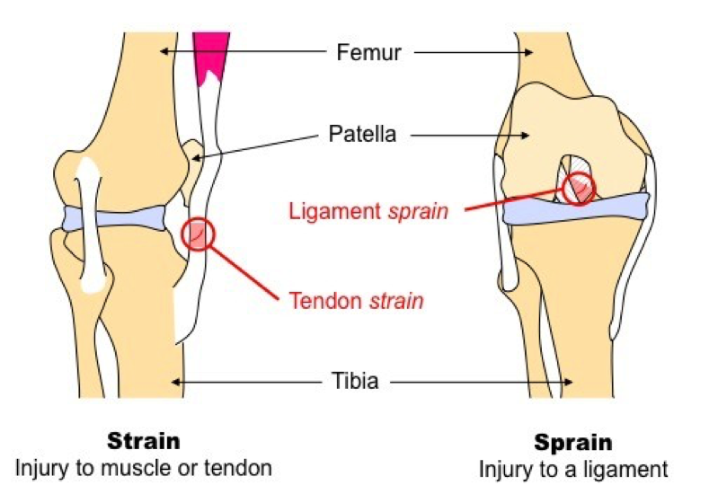 Do You Have A Strain vs. Sprain?
