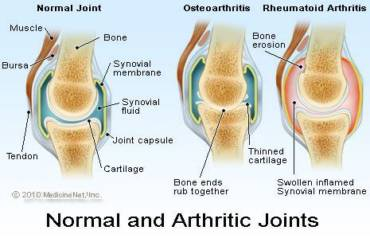 Important Facts about Arthiritis