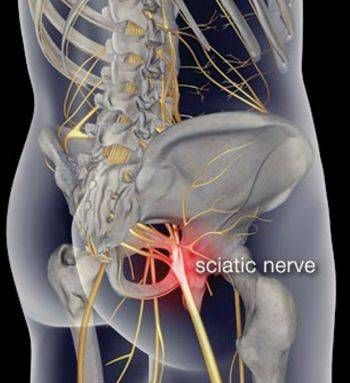 Treating Low Back Pain and Sciatica Naturally