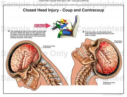 Whiplash: Common Neck Injury In Auto Accidents